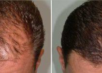 Jual Minyak Kemiri Kukui Murni untuk Rambut murni 100% berguna untuk melebatkan rambut, brewok, alis dan kumis. Setelah itu minyak kemiri bisa juga mengatasi rambut rontok dan ketombe.