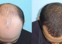 Jual Minyak Kemiri Kukui di Jogja dan Medan original 100% bermanfaat untuk melebatkan rambut, brewok, alis dan kumis. Lalu minyak kemiri dapat juga menyelesaikan rambut rontok dan ketombe.