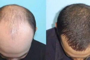 Jual Minyak Kemiri di Kaskus, Jakarta, dan Depok original 100% efektif untuk menebalkan rambut, jenggot, alis dan kumis. Lalu minyak kemiri bisa juga mengatasi rambut rontok dan ketombe.